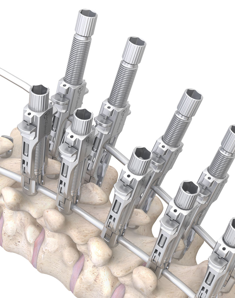 response-spine-system